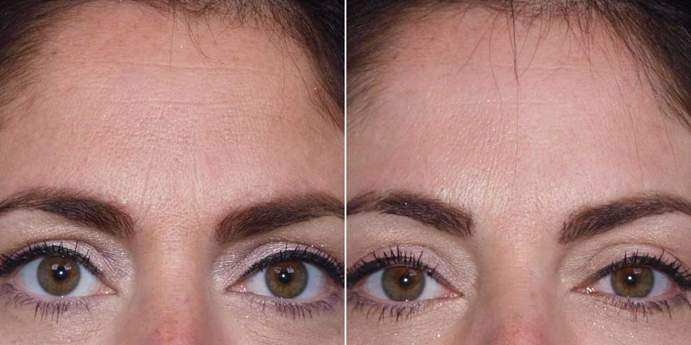 Botox Patient #1 Before/After Photo | VIDA Aesthetic Medicine