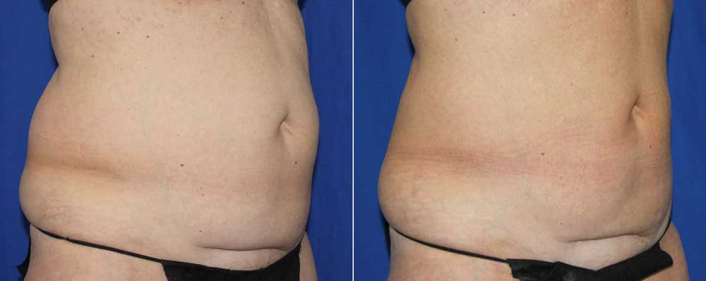 CoolSculpting Patient #1 Before/After Photo | VIDA Aesthetic Medicine