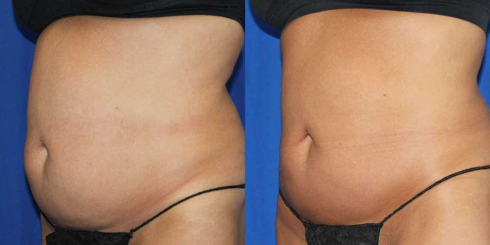 CoolSculpting Patient #2 Before/After Photo | VIDA Aesthetic Medicine