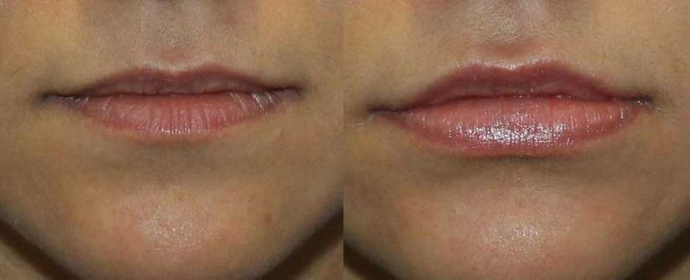 Dermal Filler Patient #2 Before/After Photo | VIDA Aesthetic Medicine