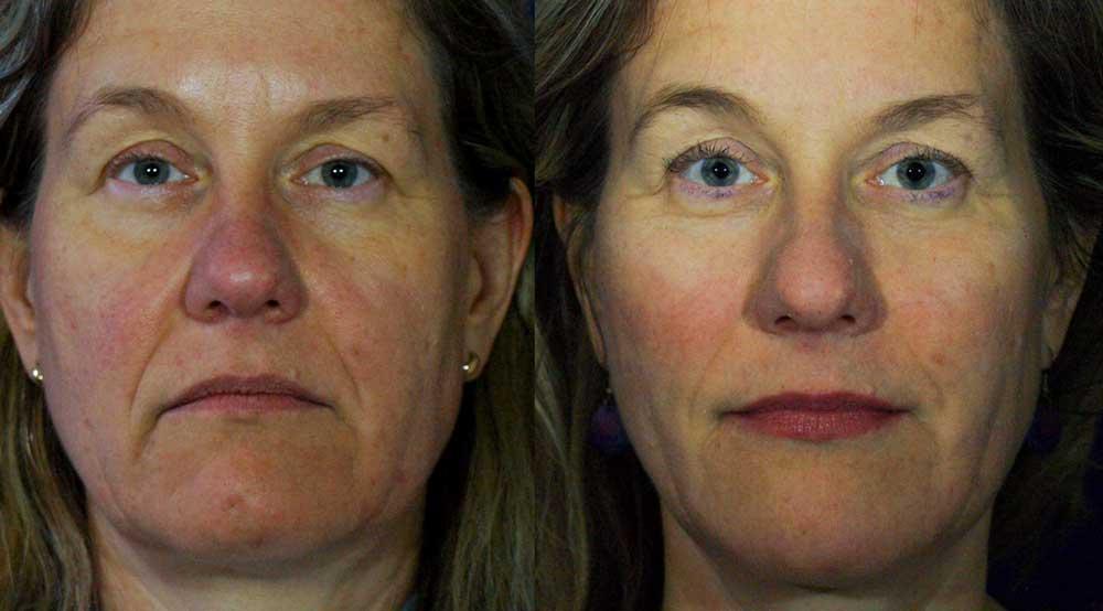 Dermal Filler Patient #3 Before/After Photo   VIDA Aesthetic Medicine