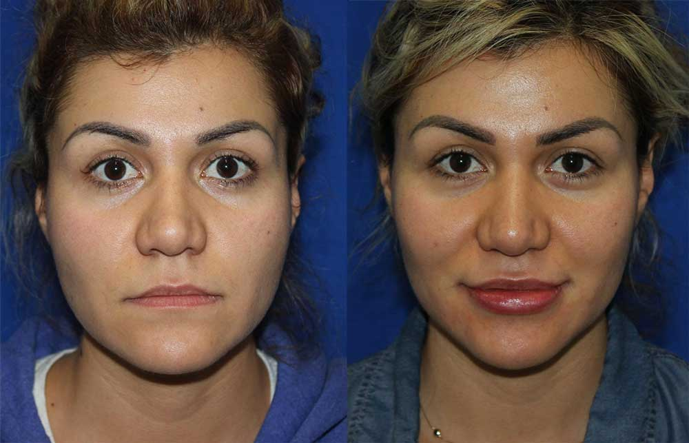 Dermal Filler Patient #4 Before/After Photo | VIDA Aesthetic Medicine