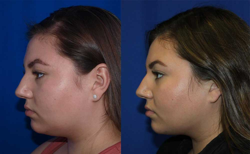 Kybella Patient #1 Before/After Photo | VIDA Aesthetic Medicine