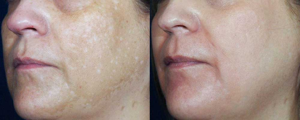 Chemical Peel Patient #1 Before/After Photo | VIDA Aesthetic Medicine
