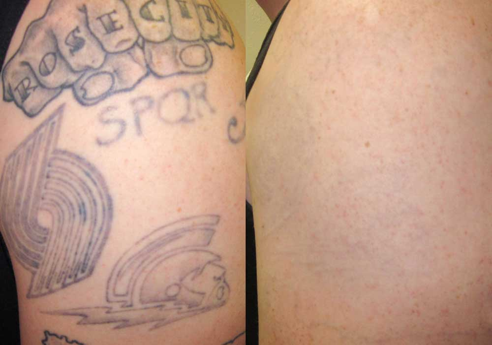 Tattoo Removal Patient #1 Before/After Photo | VIDA Aesthetic Medicine