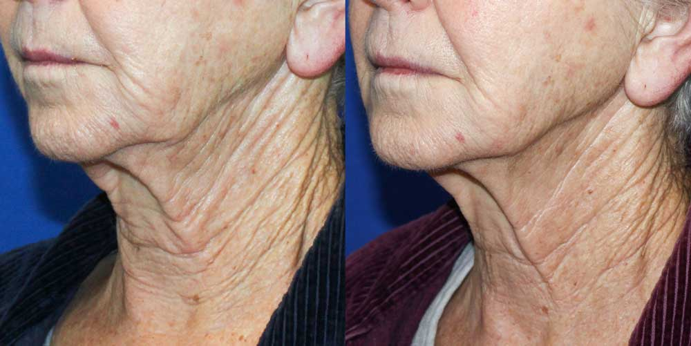 Ultherapy Patient #1 Before/After Photo | VIDA Aesthetic Medicine