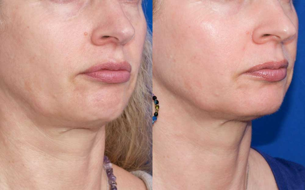 Ultherapy Patient #2 Before/After Photo | VIDA Aesthetic Medicine
