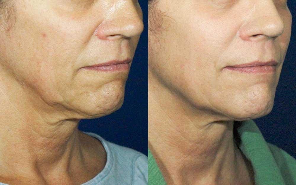 Ultherapy Patient #3 Before/After Photo | VIDA Aesthetic Medicine