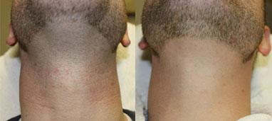 Laser Hair Removal Before/After Photo Patient 1 | VIDA Aesthetic Medicine, Salem, Oregon