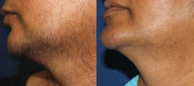 Laser Hair Removal Before/After Photo Patient 2 | VIDA Aesthetic Medicine, Salem, Oregon