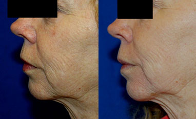 Microneedling Before/After Photo Patient 1