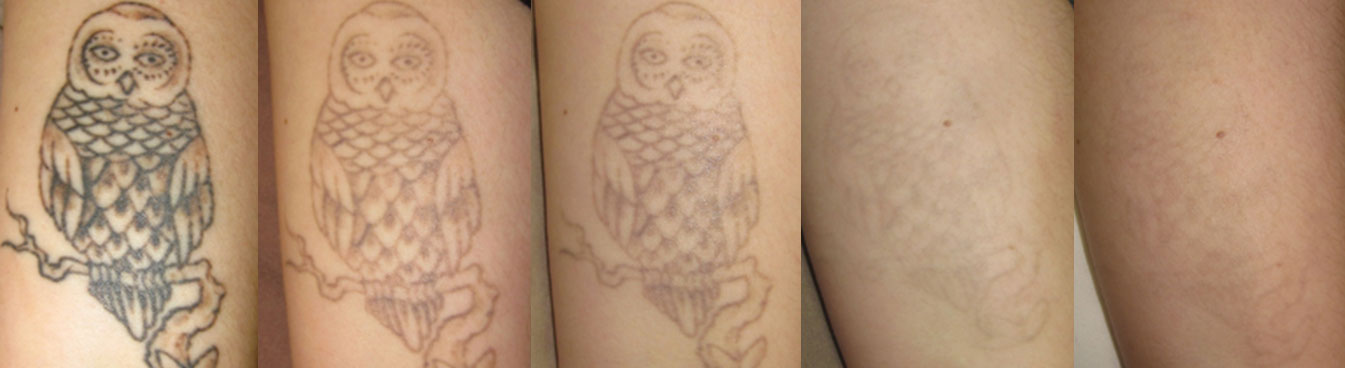 Tattoo Removal Before/After Photo Patient, VIDA Aesthetic Medicine, Salem