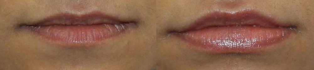 Lip Fillers Before/After Photo | VIDA Aesthetic