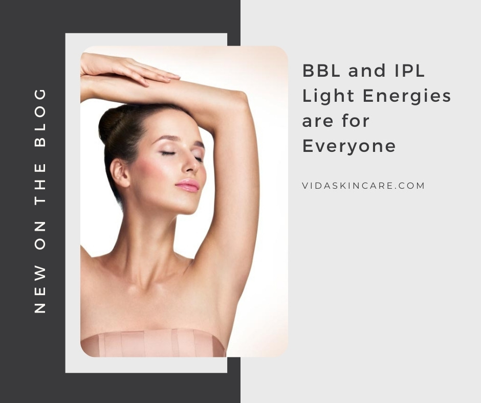 BBL and IPL Light Energies are for Everyone | VIDA Aesthetic Medicine