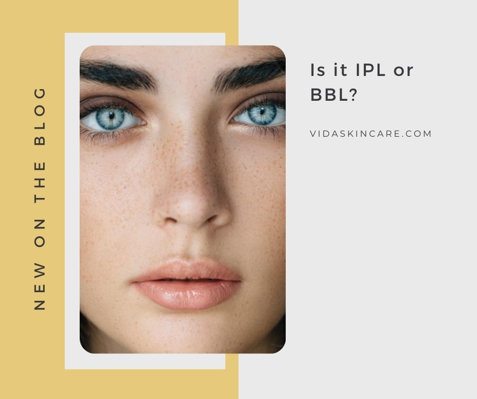 Is it IPL or BBL? | VIDA Aesthetic Medicine, Salem, Oregon