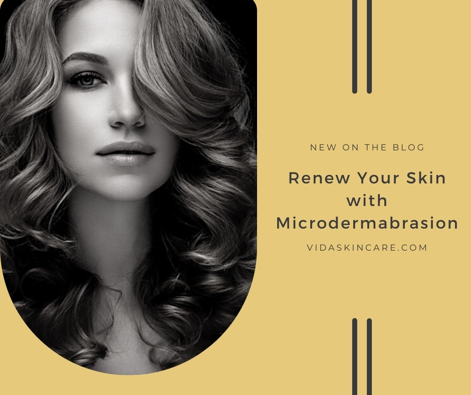 Renew Your Skin with Microdermabrasion